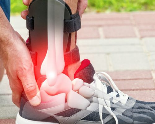 Chiropractor Sandton Sore Ankle pain