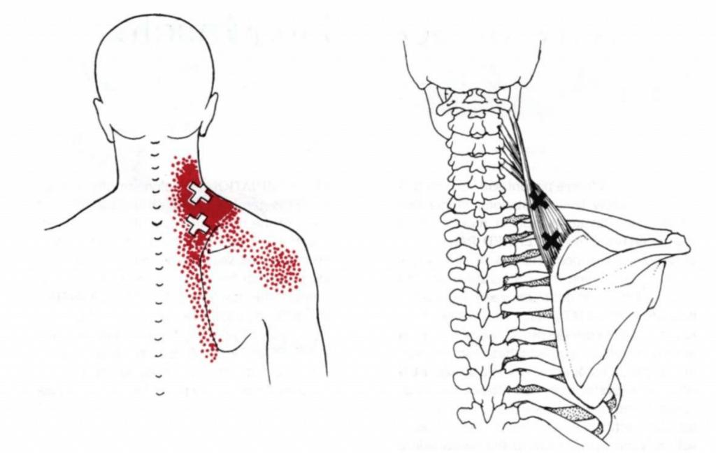 neck pain Levator scap