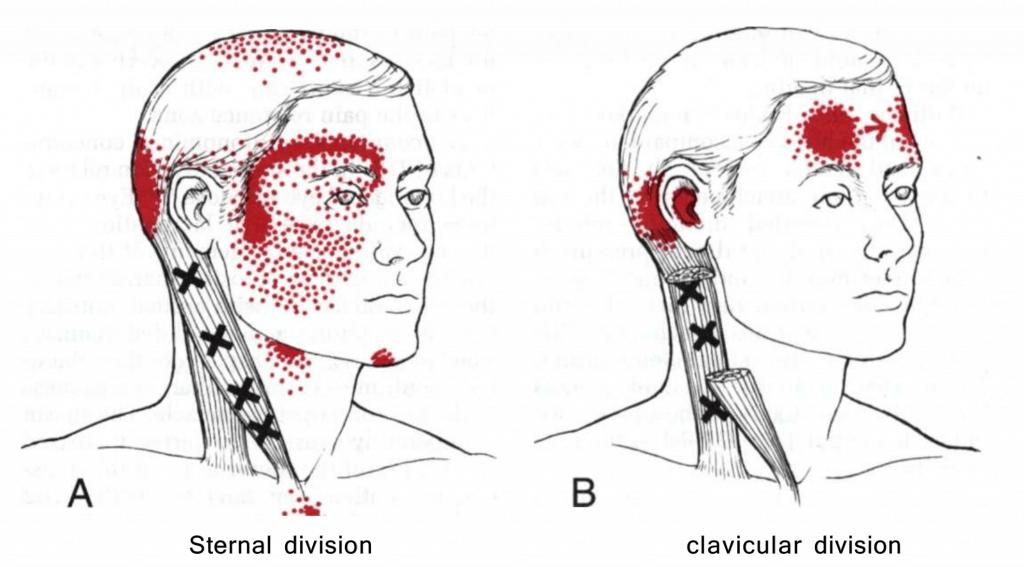 neck pain SCM