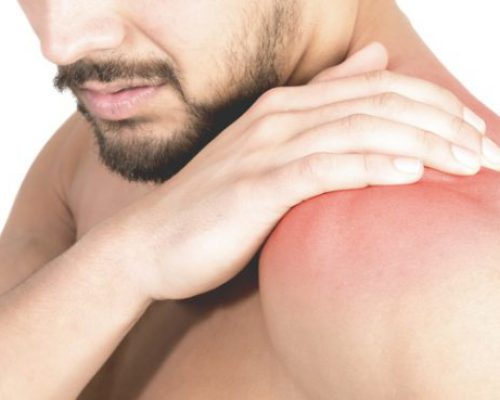 Chiropractor Sandton Shoulder injury