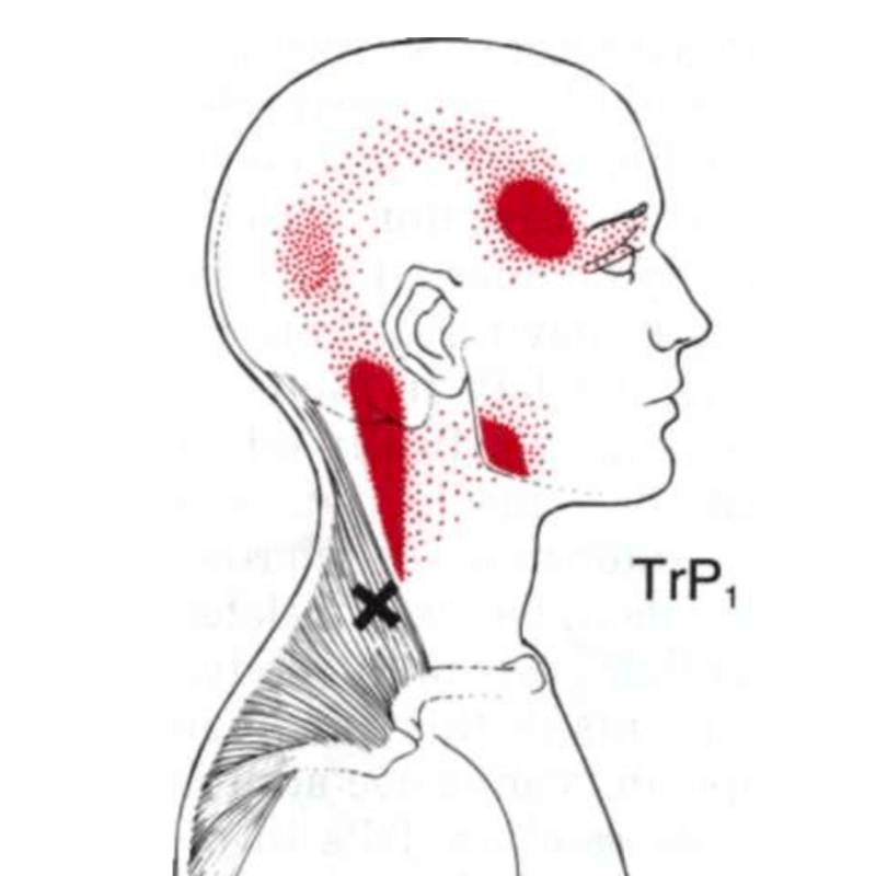 Neck pain trapezius