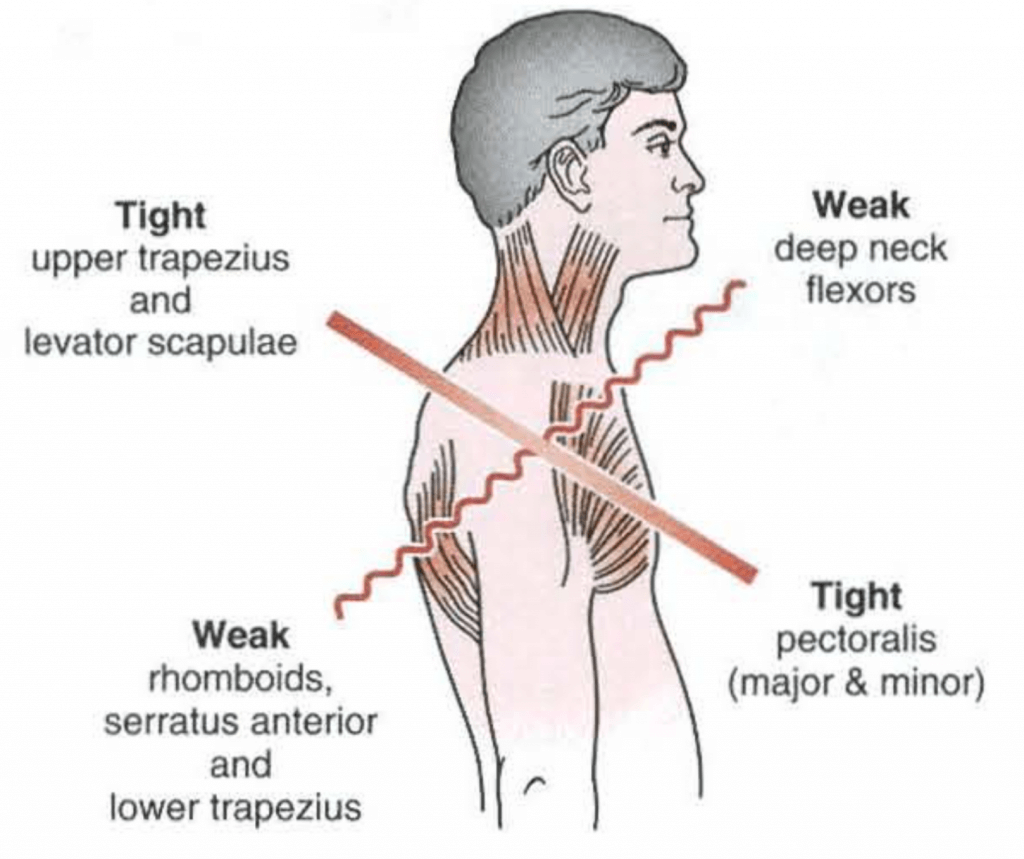 Neck pain Upper cross