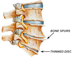 Athritis of the spine
