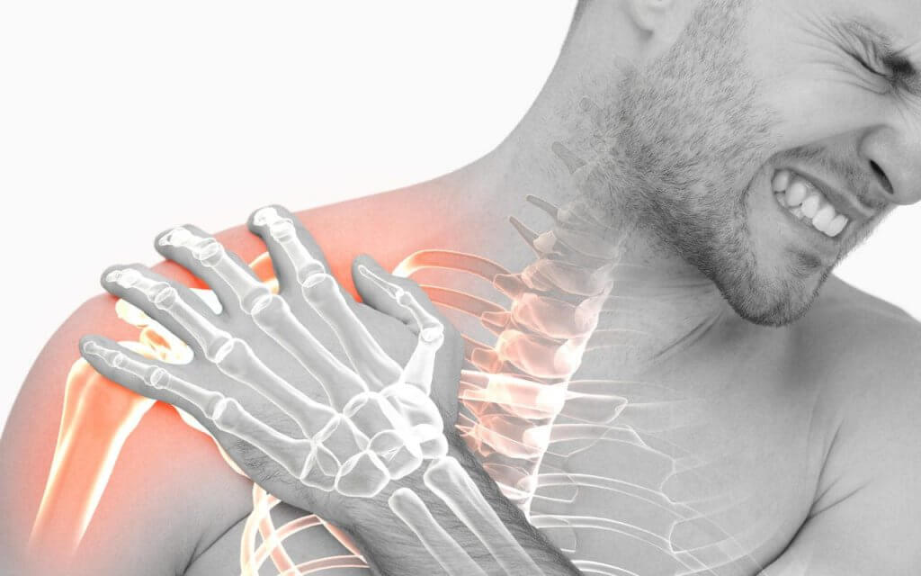 Frozen shoulder Adhesive Capsulitis
